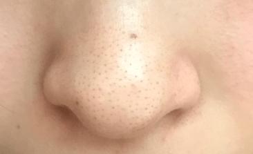 鼻の毛穴が目立たなくなった!